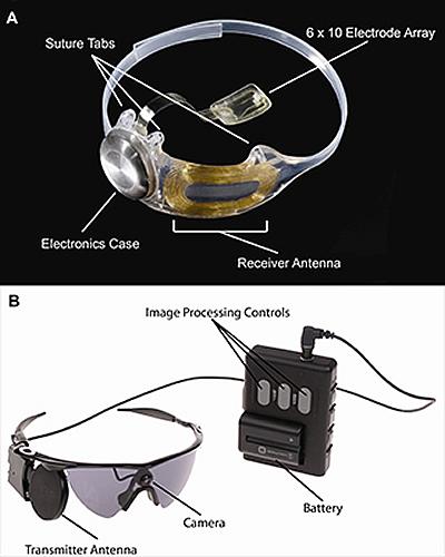 """bionic eye"" system"