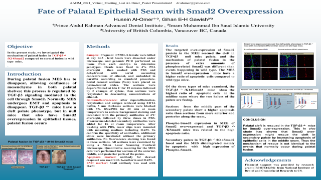 111:Fate of Epithelial Palatal Seam With Smad2 Over-expression[AAOM2021]