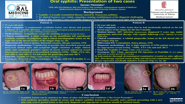 116:Oral Syphilis: Presentation Of Two Cases[AAOM2021]