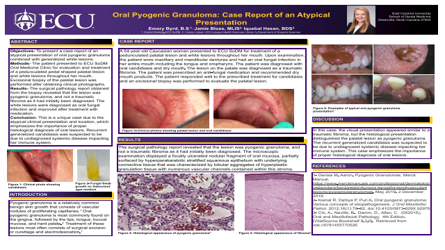120:Oral Pyogenic Granuloma: Case Report of an Aytpical Presentation[AAOM2020}