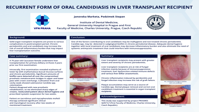 127: Recurrent Form of Oral Candidiasis in Liver Transplant Recipient