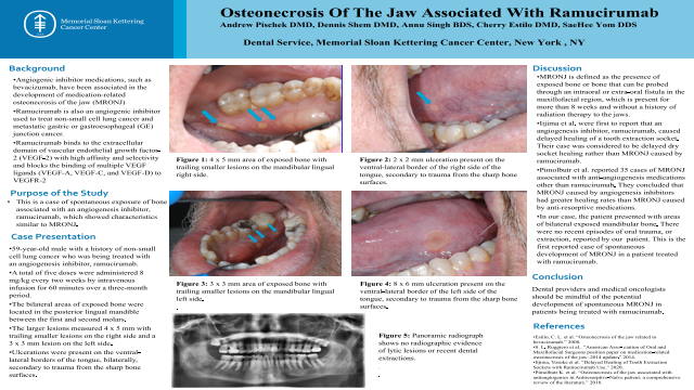 136:Osteonecrosis Of The Jaw Associated With Ramucirumab[AAOM2021]