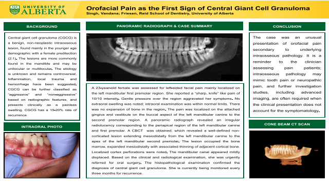 139:Orofacial Pain as the First Sign of Central Giant Cell Granuloma[AAOM2021]