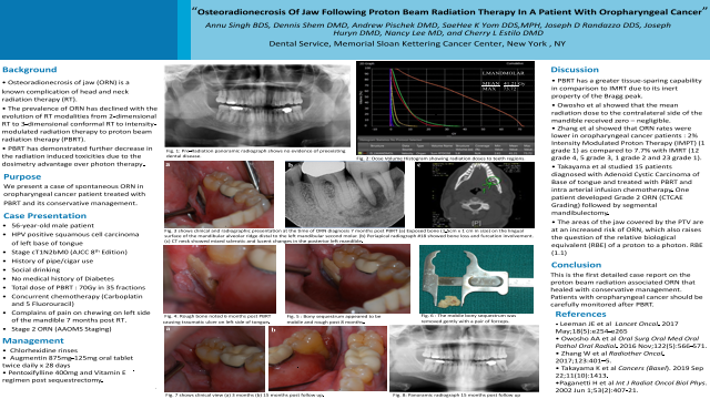 156:Osteoradionecrosis Of Jaw Following Proton Beam Radiation Therapy In A Case Of Oropharyngeal Cancer[AAOM2021]
