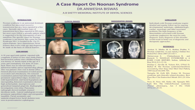159:A Case Report On Noonan Syndrome[AAOM2021]