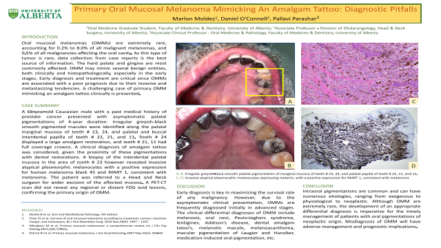 178:Primary Oral Mucosal Melanoma Mimicking An Amalgam Tattoo: Diagnostic Pitfalls[AAOM2021]