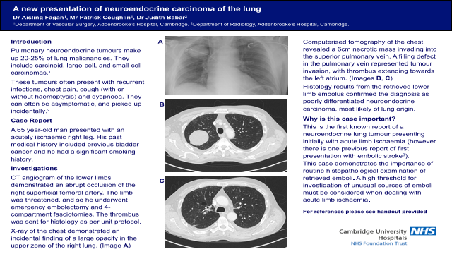 A new presentation of neuroendocrine carcinoma of the lung
