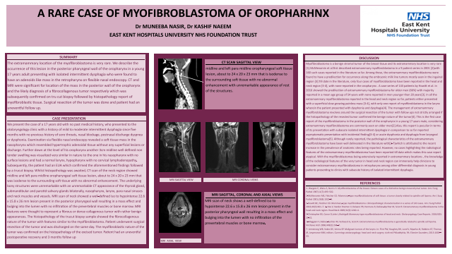 A RARE CASE OF MYOFIBROBLASTOMA OF OROPHARNX
