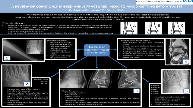 A REVIEW OF COMMONLY MISSED ANKLE FRACTURES - HOW TO AVOID GETTING INTO A TWIST!
