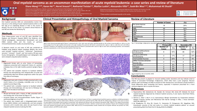 193:Oral myeloid sarcoma as an uncommon manifestation of acute myeloid leukemia: a case series and review of literature[AAOM2020}