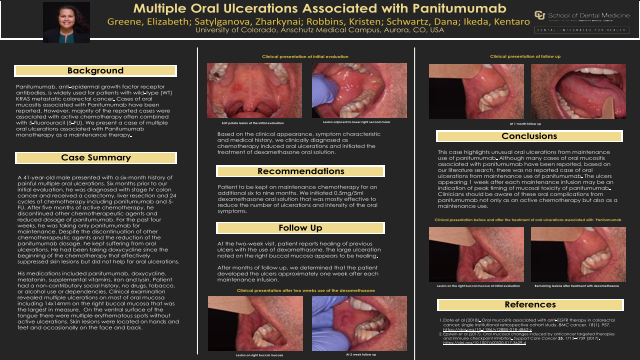 206:Multiple Oral Ulcerations Associated with Pantiumumab[AAOM2020}