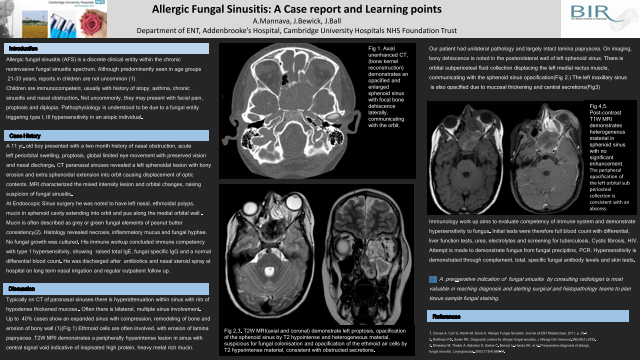 Allergic Fungal Sinusitis: A Case report and Learning points
