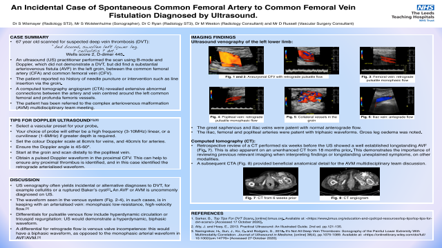 An incidental case of spontaneous common femoral artery to common femoral vein fistulation diagnosed by ultrasound.