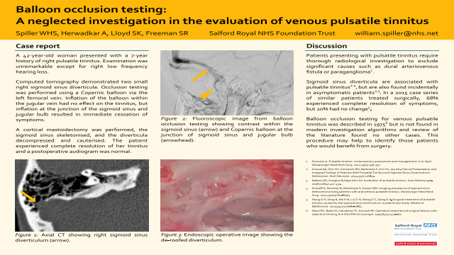 Balloon occlusion testing: A neglected technique in the evaluation of venous pulsatile tinnitus