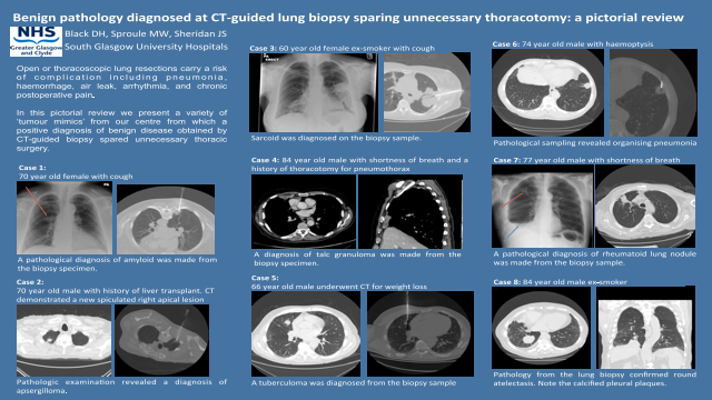 Benign pathology diagnosed at CT-guided lung biopsy sparing unnecessary thoracotomy: a pictorial review