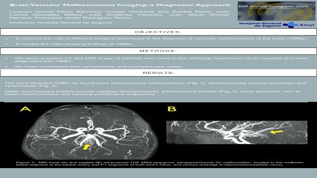 Brain Vascular Malformations Imaging: a Diagnostic Approach