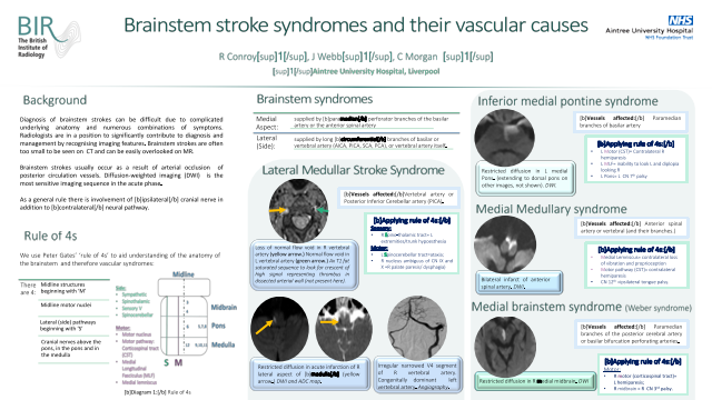 Brainstem stroke syndromes and their vascular causes