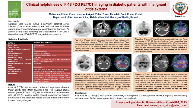 Clinical helpfulness of F-18 FDG PET/CT imaging in diabetic patients with malignant otitis externa