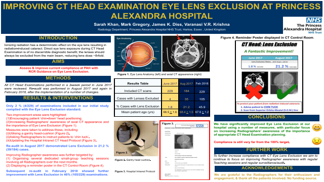 Improving CT Head Examination Eye Lens Exclusion at Princess Alexandra Hospital (Harlow, Essex)