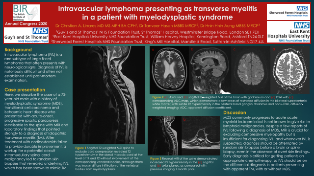 Intravascular lymphoma presenting as transverse myelitis in a patient with myelodysplastic syndrome
