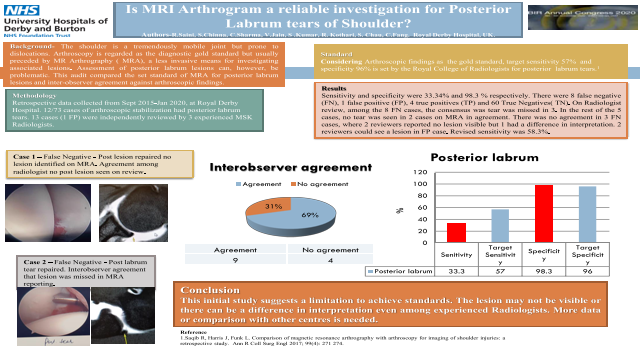 Is MRI Arthrogram a reliable investigation for Posterior Labrum tears of Shoulder?