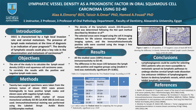 LYMPHATIC VESSEL DENSITY AS A PROGNOSTIC FACTOR IN ORAL SQUAMOUS CELL CARCINOMA USING D2-40
