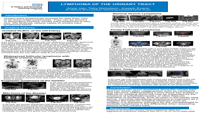 Lymphoma of the Urinary Tract