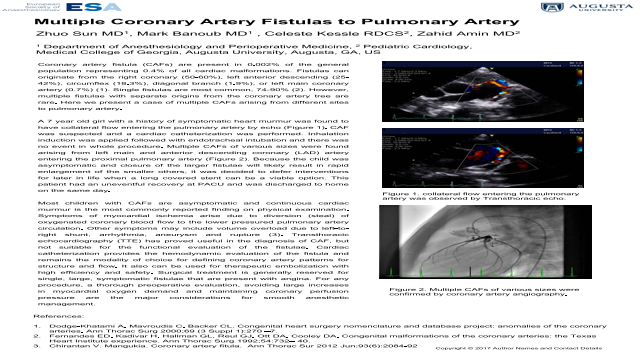 Multiple Coronary Artery Fistulas to Pulmonary Artery