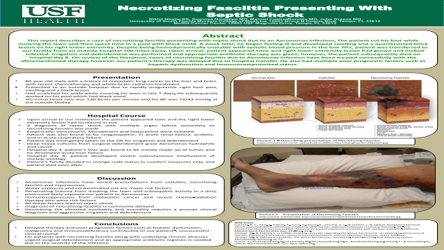 Necrotizing Fasciitis Presenting With Septic Shock