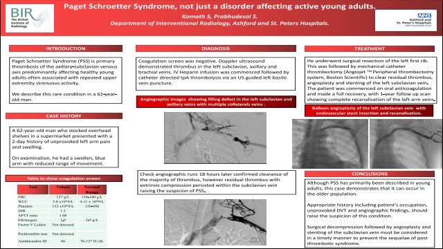 Paget Schroetter Syndrome, not just a disorder affecting active young adults.