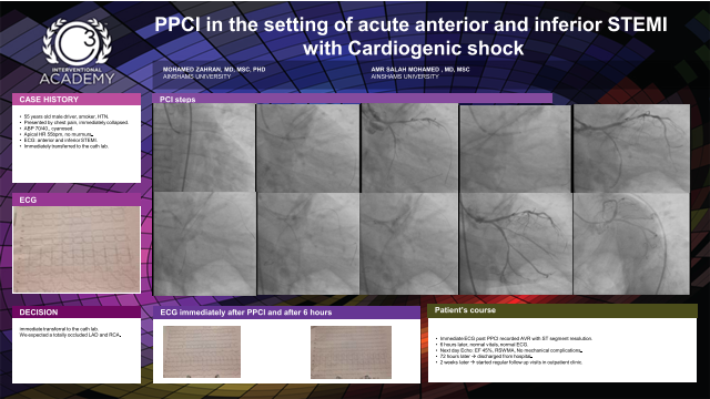 PPCI in the setting of acute anterior and inferior STEMI with Cardiogenic shock