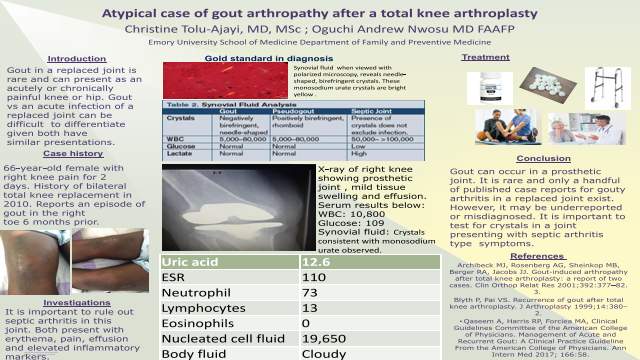 Resident: A typical case of gout arthropathy after a total knee arthroplasty