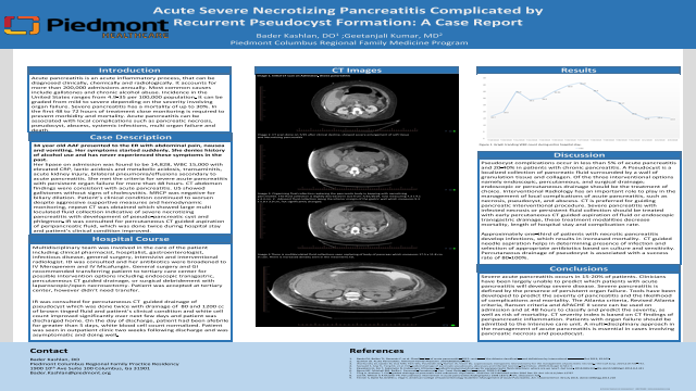 Resident: Acute Severe Necrotizing Pancreatitis with Recurrent Pseudocyst Formation: A case Report