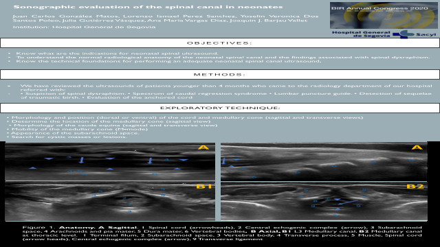 Sonographic evaluation of the spinal canal in neonates