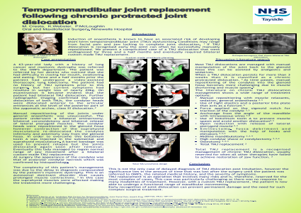 Temporomandibular joint replacement following chronic protracted joint dislocation