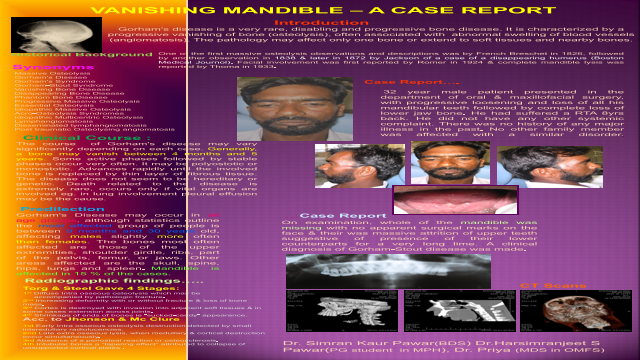 vanishing mandible- a case report