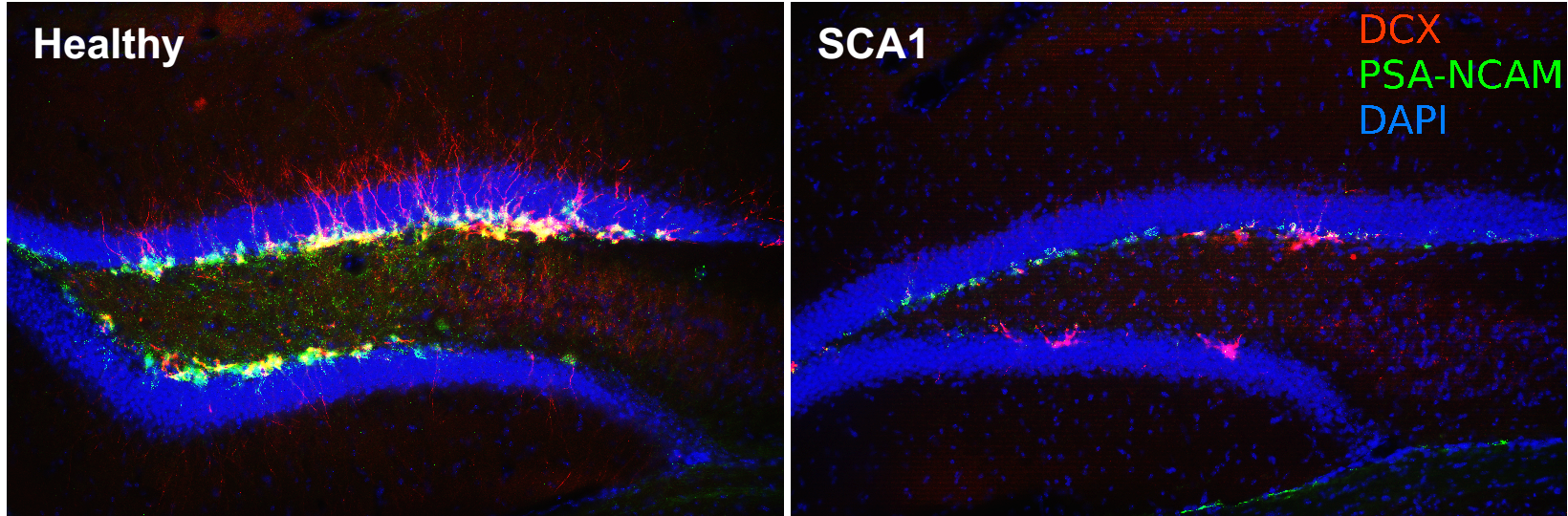 he hippocampi of mice with spinocerebellar ataxia 1 showed dramatically impaired production of new neurons.