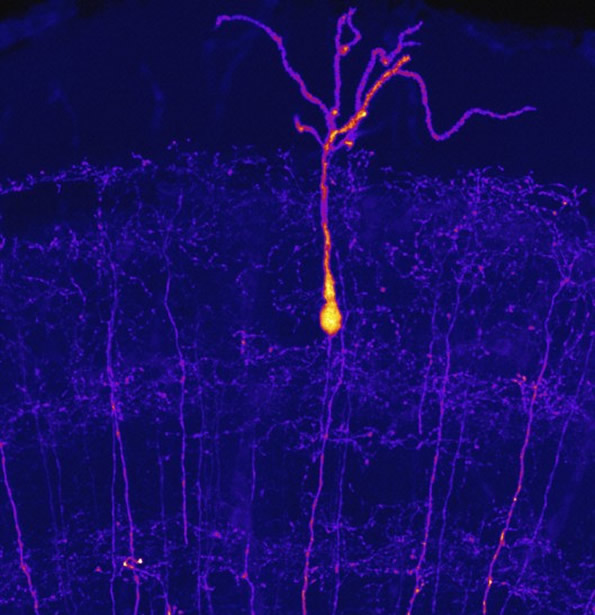 Zebrafish neurons