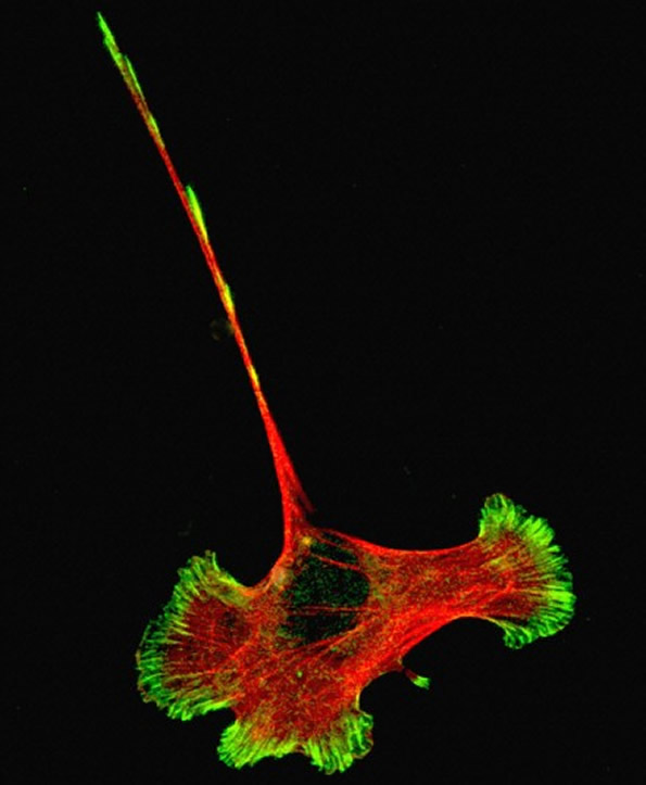 Developing Nerve Cell