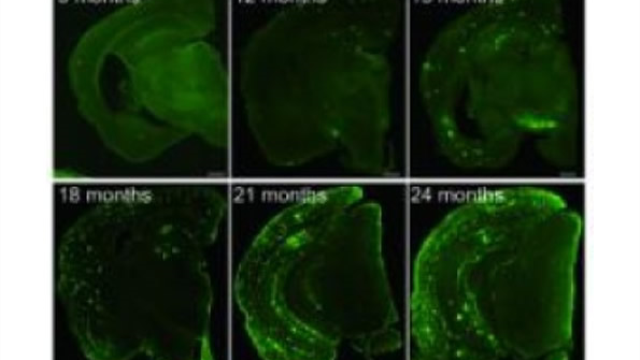 New mouse model could revolutionize research in Alzheimer's disease