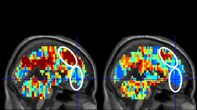 $3.8M NIMH Grant To Diagnose Suicidal Thinking Using Brain Imaging
