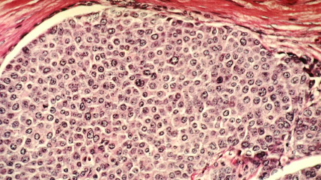 3D Breast Cancer Models Introduce Stromal Cells as New Drug Therapy Targets