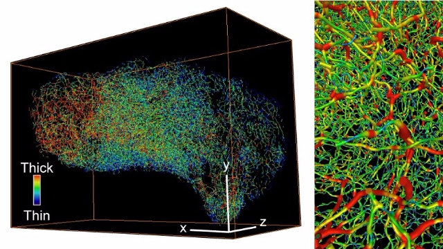 3D Microscopy Gives More Accurate Cancer Diagnosis