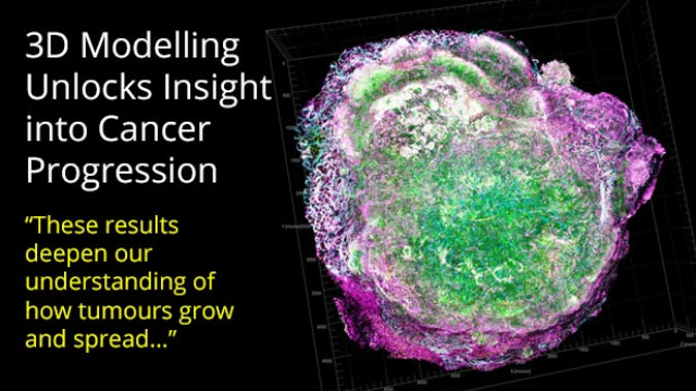 3D Modelling Provides Clearer Picture of Cancer Progression