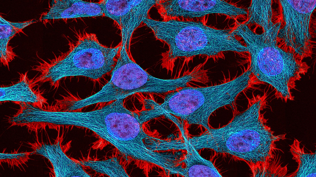 5 Contributions HeLa Cells Have Made to Science