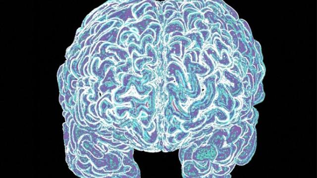 The social origins of intelligence in the brain