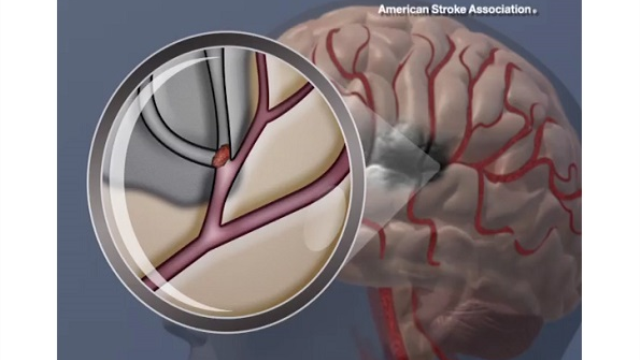 Slowing brain functions linked to increased risk of stroke, death