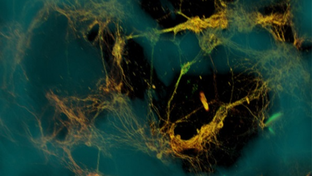 Bioengineers create functional 3D brain-like tissue