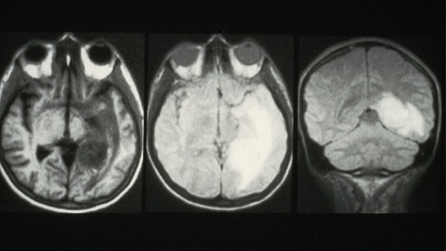 Myc inhibition is an effective therapeutic strategy against the most aggressive of all brain tumors