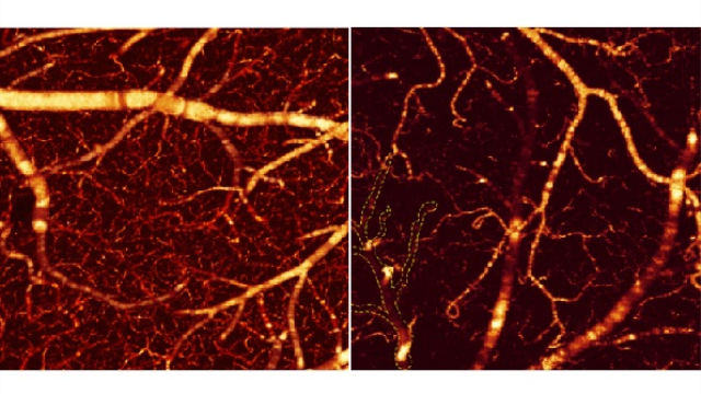 New imaging technique shows how cocaine shuts down blood flow in mouse brains
